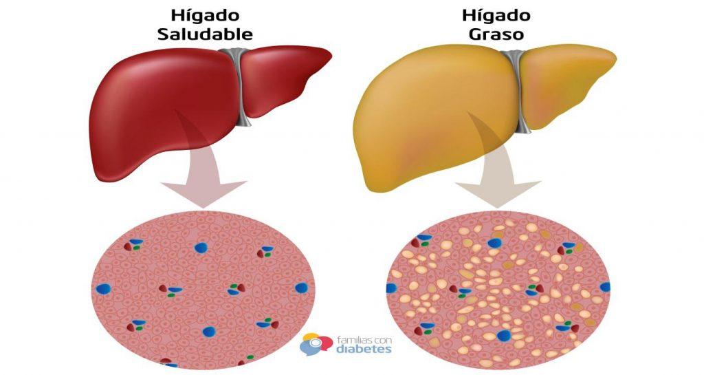 Hígado Graso - Cirujano Monterrey