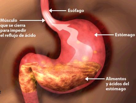 Reflujo ardoroso y hernia hiatal cirujano monterrey - Alimentos prohibidos para la hernia de hiato ...
