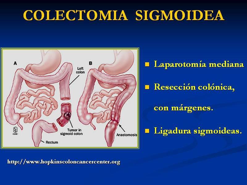 Tumor de Colon - Cirujano Monterrey