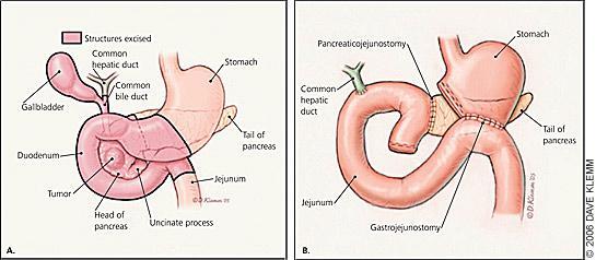 Tumor de Páncreas - Cirujano Monterrey