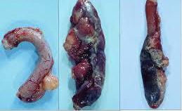apendictis-9