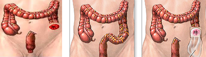 diverticulos-del-colon-19