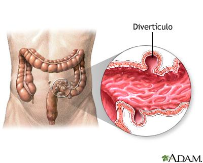 diverticulos-del-colon-5