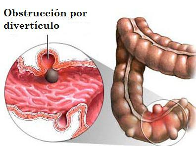diverticulos-del-colon-8