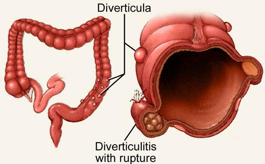 diverticulos-del-colon-9