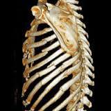 fractura-de-costillas-2