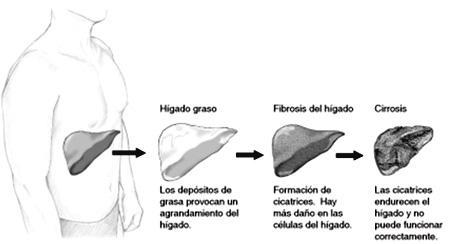 higado-graso-3