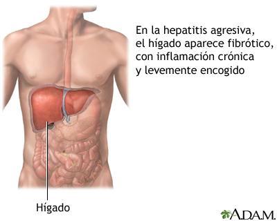 la-hepatitis-y-cirrosis