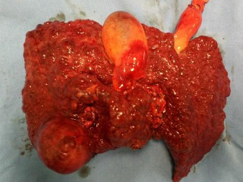 la-hepatitis-y-cirrosis-6